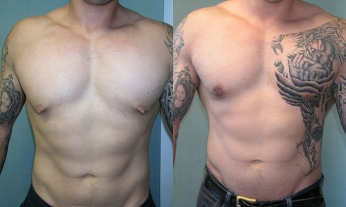 Muscular/fit guy with puffy nipples - before and after