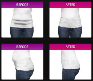 tum-tape-before-and-after-photos