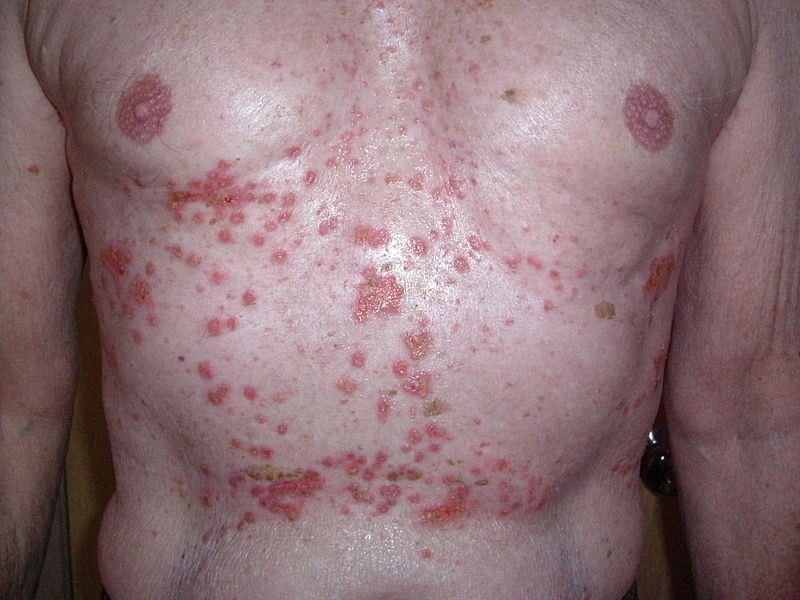 Itchy Rash on Chest – What Should I Do About It?