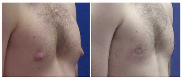 Example of man with puffy nipples before and after surgery