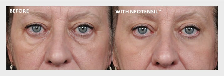 neotensil-eliminate-puffy-under-eye-bags-before-and-after