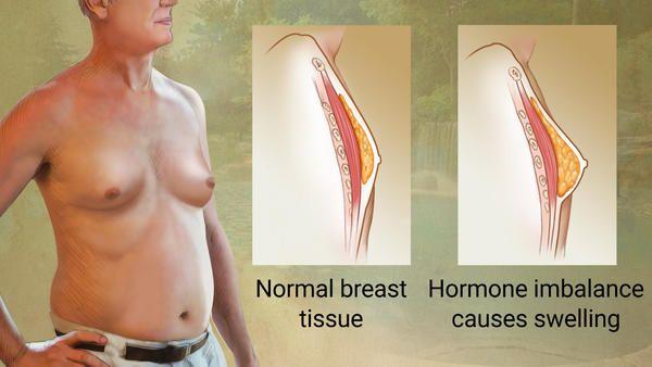 Example of gynecomastia.