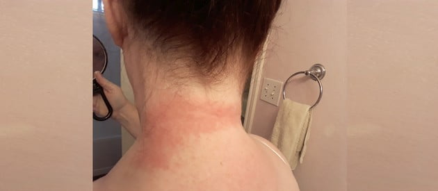 undershirts causing neck rash