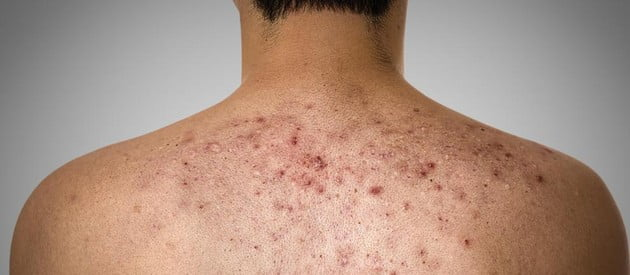 Example of back acne. photo credit: wisegeek.net